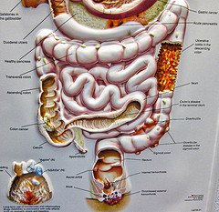 Poster showing the section of the large intestine down to the rectum area